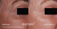 excelv-One