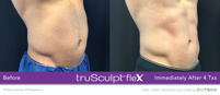 truSculptFlex-One