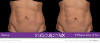 truSculptFlex-Two