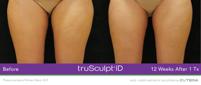 truSculptiD-One